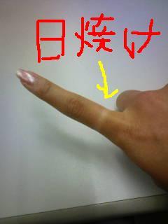 0821hiyake.JPG